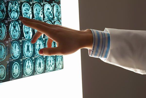 Brain Injury Cases